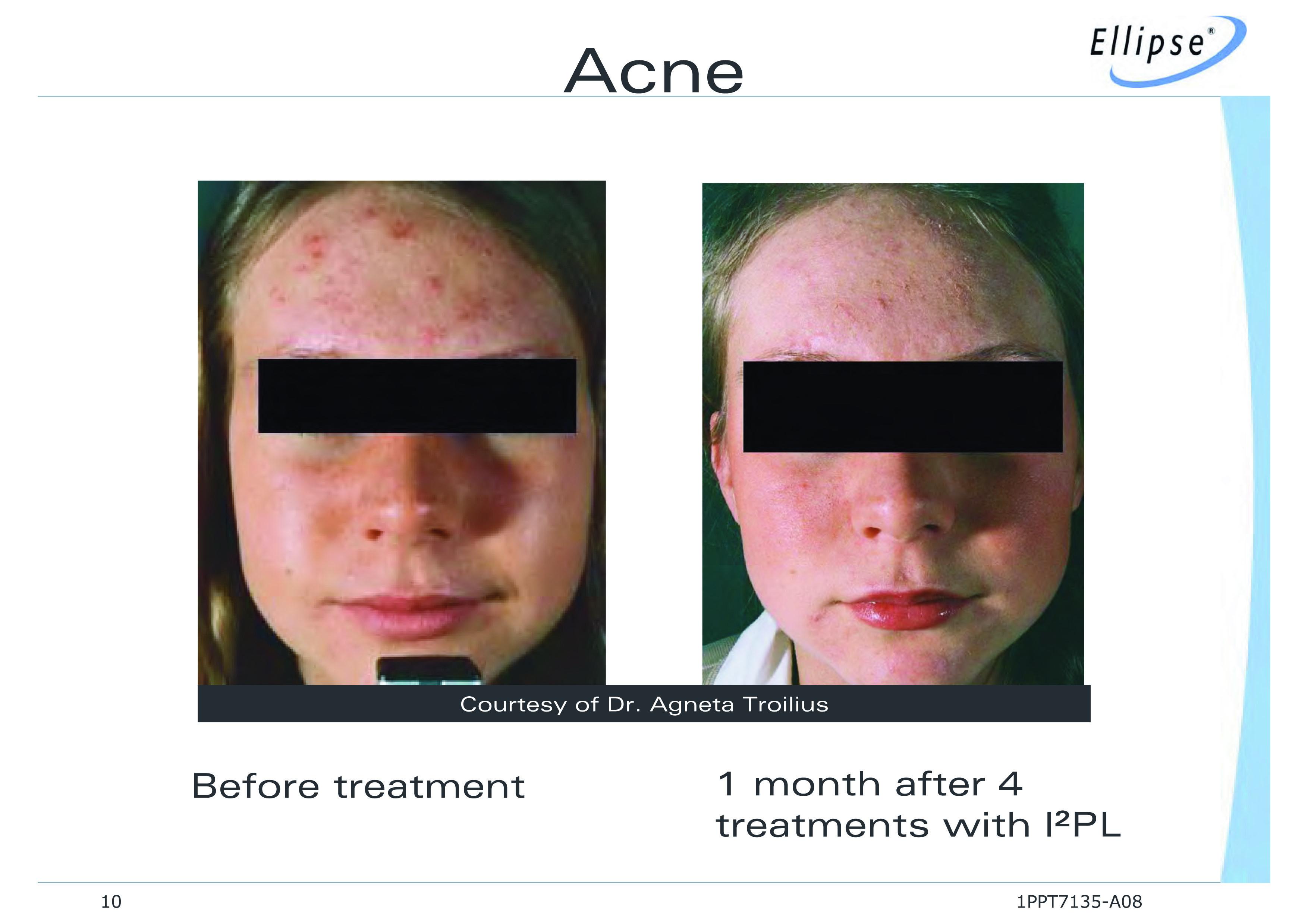 Acne Treatment Using Ellipse I2pl
