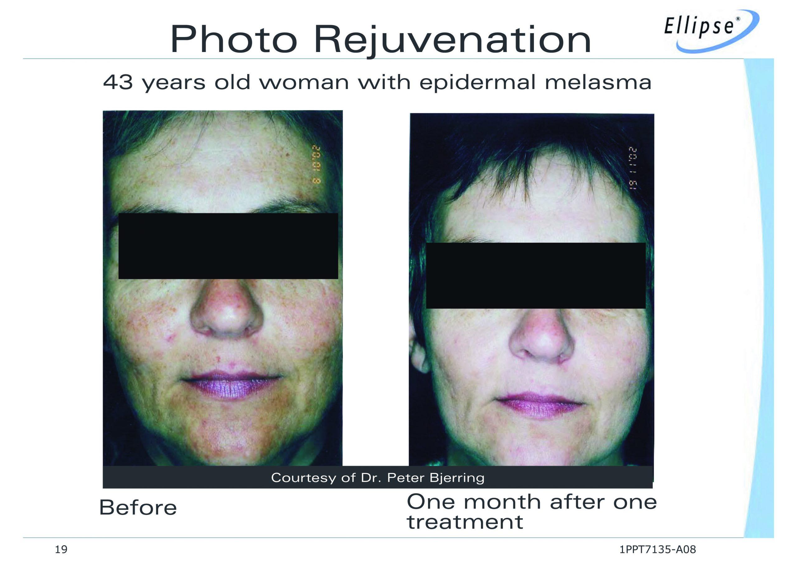 Photo Rejuvenation Facial using Ellipse I2PL