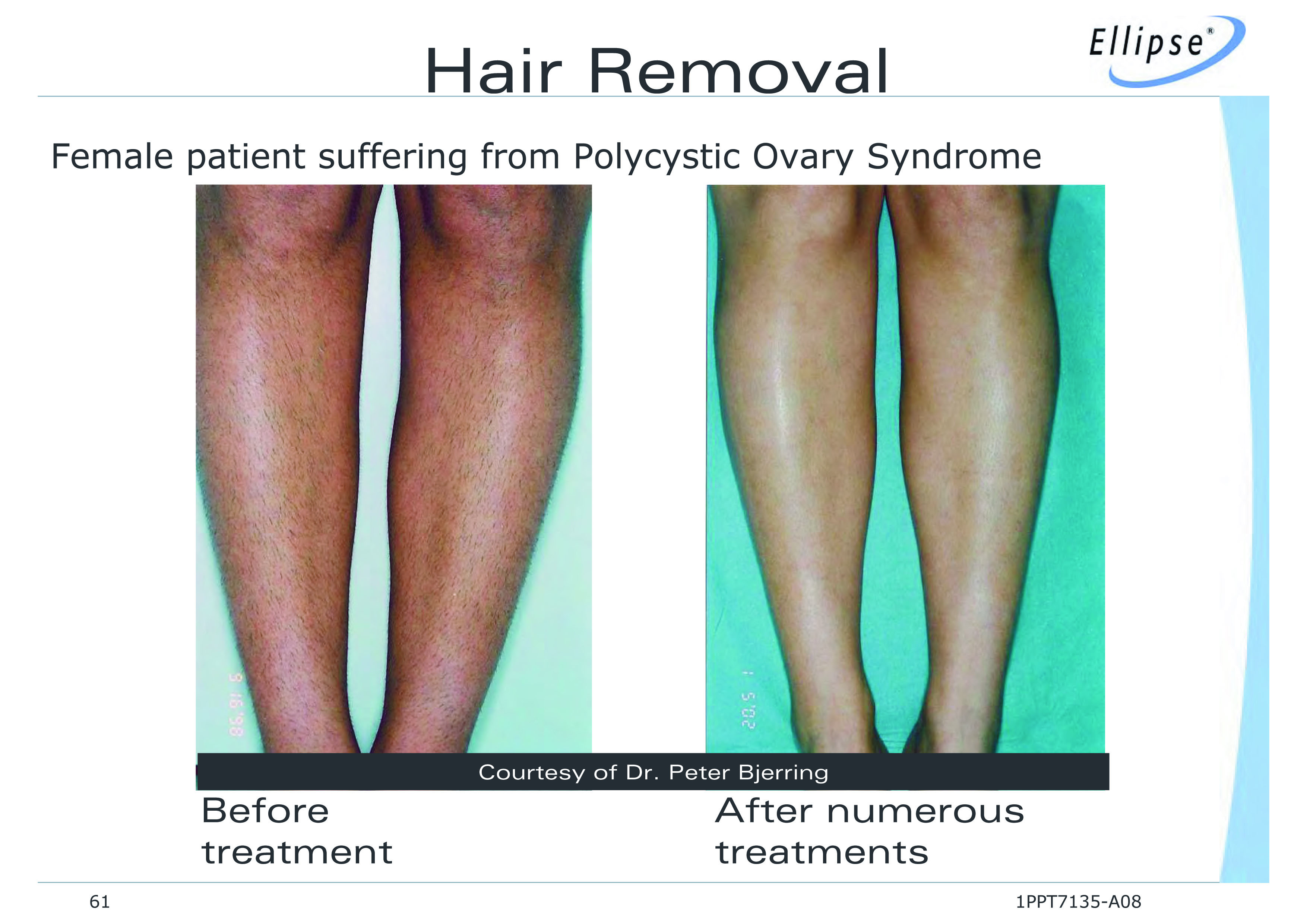 Ideal Image Laser Hair Removal Long Island Garden City Ny