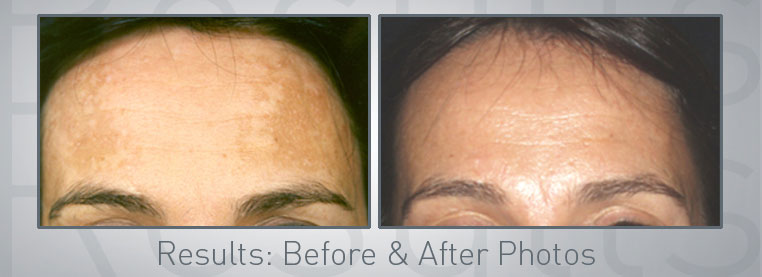 Environ Advanced Collagen Power Facial