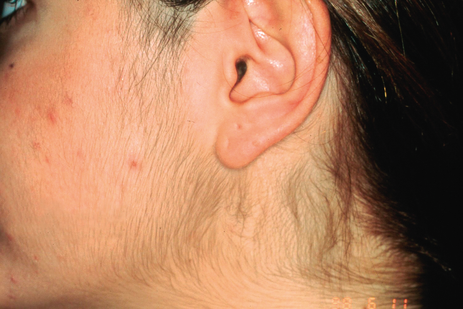 Electrolysis - your questions answered    Beauty Haven Salon